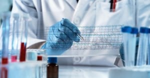 genetic engineering reading the structure chart with the results of the test / doctor analyzing DNA sequence results analysis graph; Prenatal Genetic Screening